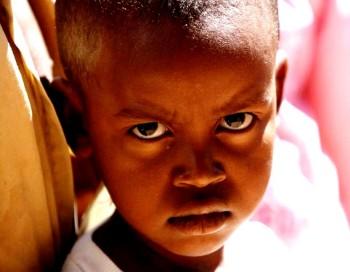 unicef guinée